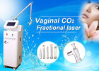 Vagina Tightener / RF Fractional Co2 Laser Machine , Fractional Co2 Laser Skin Resurfacing
